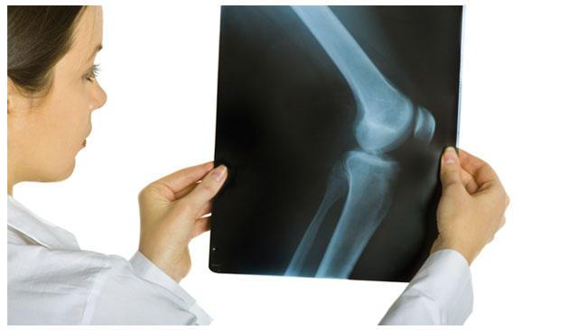 Photo of Sık Atlanan Ortopedik Yaralanmalar – 2