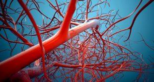 artery2