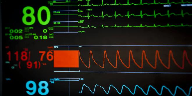 Photo of Normalleşen Vital Değerler Pulmoner Emboli Olasılığını Azaltır mı?