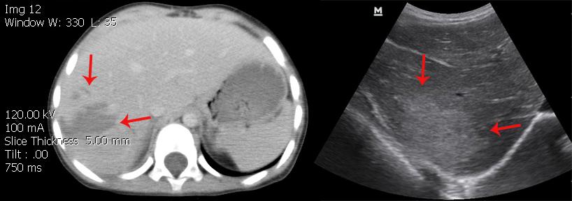 karaciğer laserasyonu