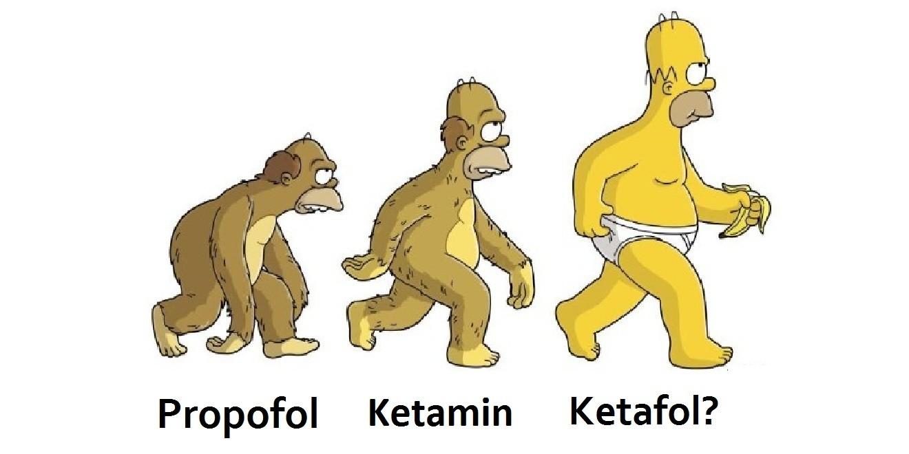 Photo of Ketafol: Prosedüral sedasyon ve aneljezide taşları yerinden oynatıyor mu?