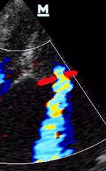 Vena kontrakta genişliği: Kırmızı çizgilerin (mitral kapakların) arasındaki mesafe