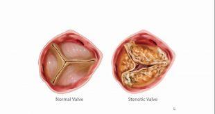 Aort Darlığı