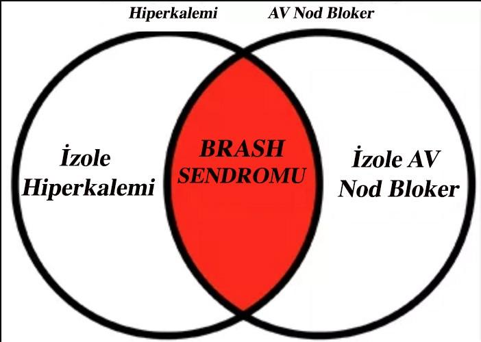 BRASH SENDROMU