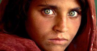 Göz Acilleri