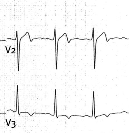Photo of Wellens Sendromu ve Ters U Dalgası