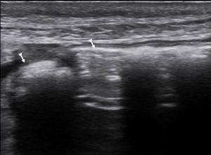 Normal barsak gazı; soldaki ok peritoneal hattan uzak barsak gazı görünümü, sağdaki ok peritoneal hatta yakın barsak gazı görünümü (Burada hiperekojen hat bir uçta kesiliyor, peritoneal hat ile birleşmiyor).