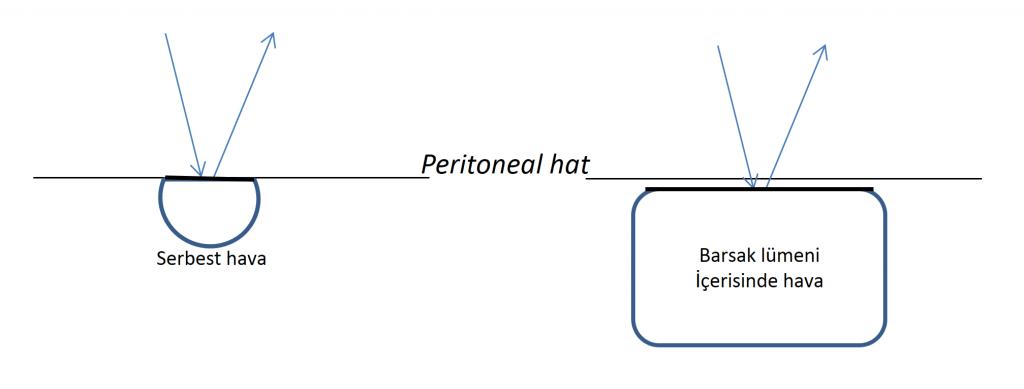 Serbest hava varlığında peritoneal çizgide belirginleşme ve hiperekojen görünüm oluşurken, barsak lümeni içerisindeki hava peritoneal hattın devamı olarak izlenmez.