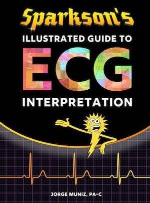Photo of Sparkson'un Resimli EKG Kitabı – Yorumlama Kılavuzu