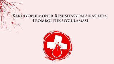 Photo of Kardiyopulmoner Resüsitasyon Sırasında Trombolitik Uygulaması