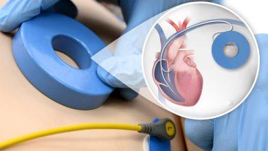 Photo of İmplante Edilebilir Kardiyoverter Defibrilatör (ICD) Şoklarının Yönetimi