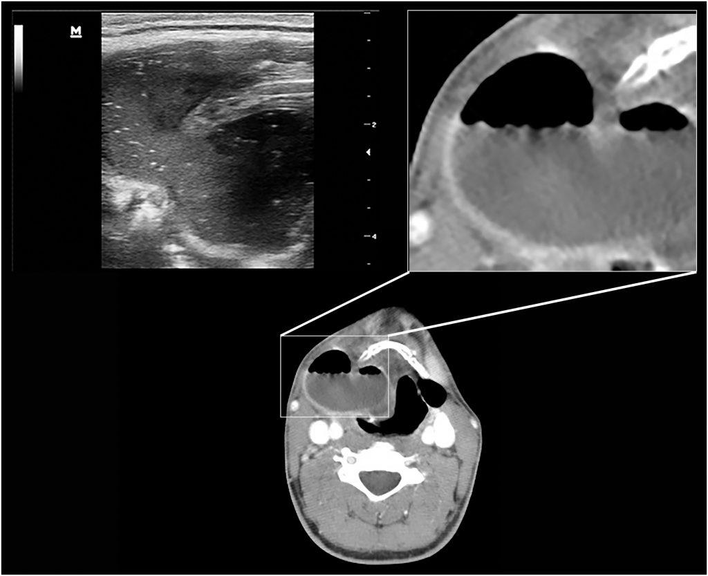 USG ve BT'de sağ submandibular bölgedeki mix tip laringopyoselin seyri. BT görüntülerin aksine, USG'de hava sıvı materyal ile karışmış olarak izlenmektedir. BT'de ayrıca sol tarafta da mix tip laringosel oluşumu raporlanmıştır. Bu kesitte ise laringoselin eksternal bölümü izlenmektedir.