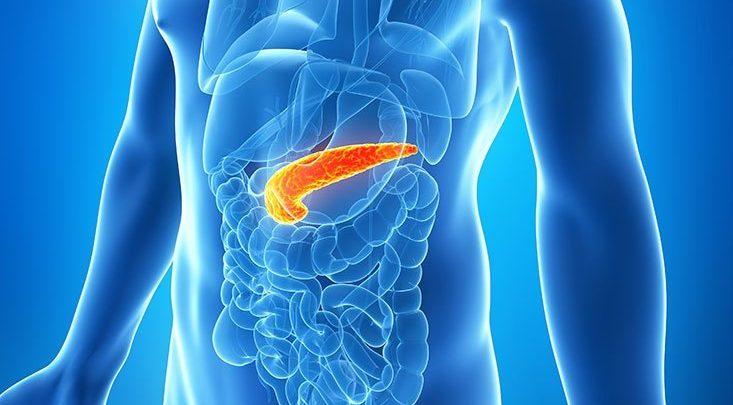 Photo of Ciddi akut pankreatit yönetiminde neler değişti?: WSES 2019 Kılavuz Özeti