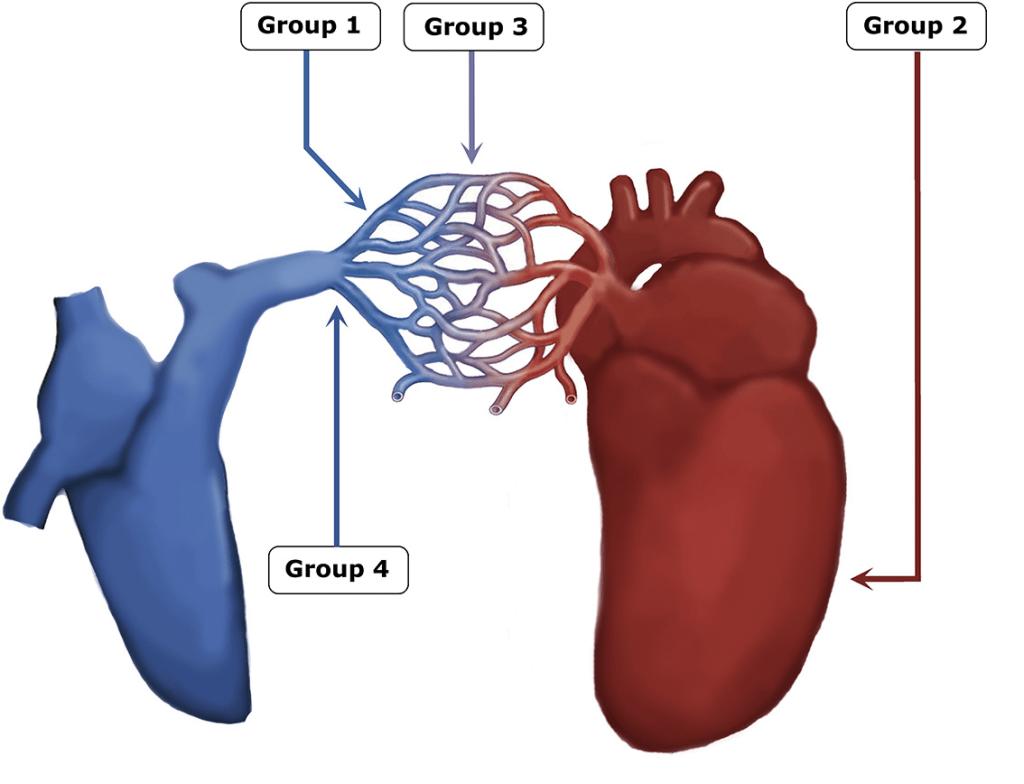 PHT anatomik ve patofizyolojik sınıflama