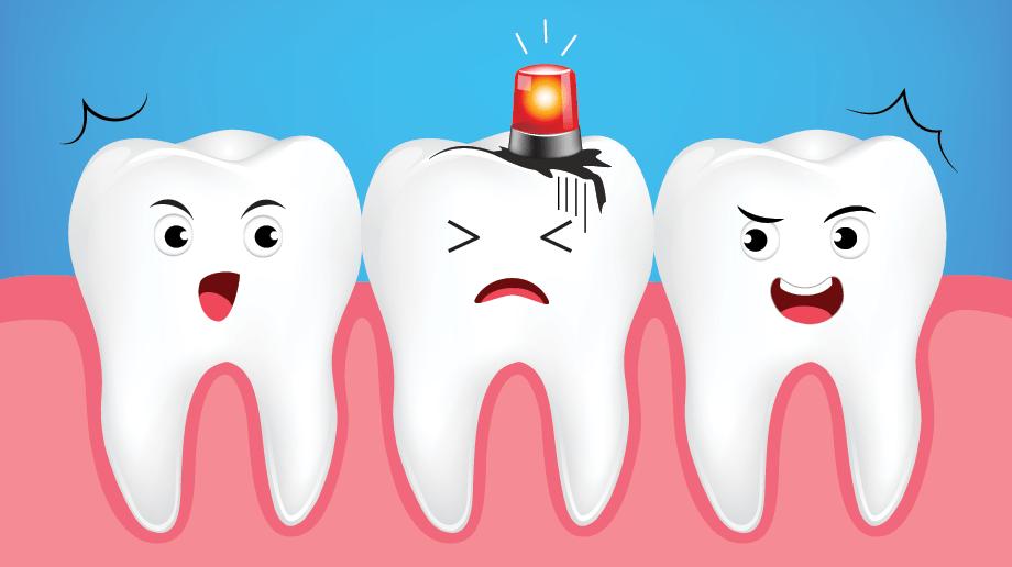 diş yaralanmaları