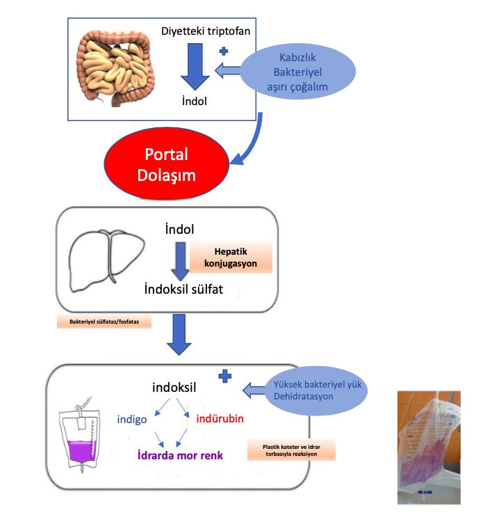 """Mor idrar Torbası Sendromu'nda metabolik yollar """"+"""" ile patogenezine katkıda bulunan faktörler işaret edilmiştir"""