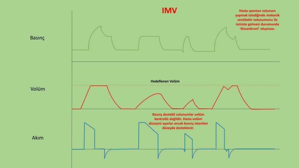 invaziv mekanik ventilasyon - IMV