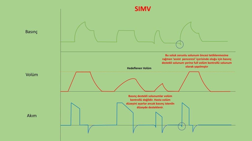invaziv mekanik ventilasyon - SIMV