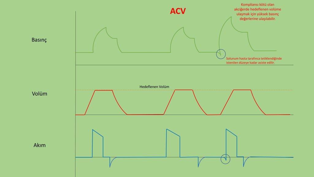 invaziv mekanik ventilasyon -ACV